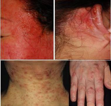 皮膚 ピリピリ 痛い 顔がヒリヒリ痛い!化粧水がしみる・かゆいときの原因と対策 医肌研...